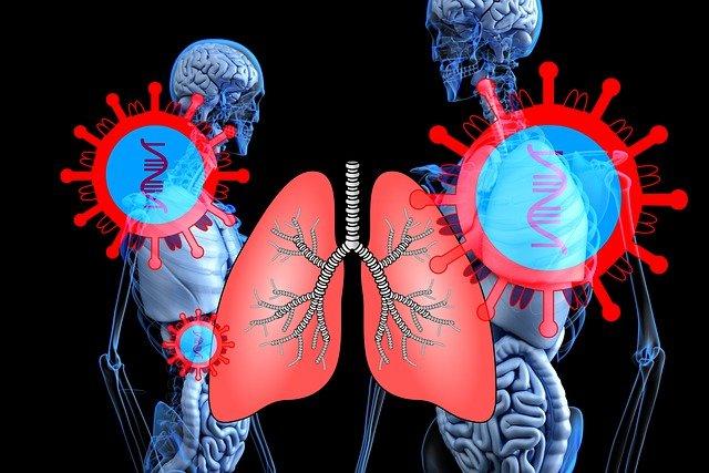 מחלת ריאות חסימתית