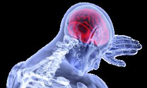 ארוע מוחי
